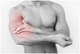 Physiothérapie, clinique de physiothérapie à Montréal, élongation du muscle, claquage, élongation musculaire du quadriceps, guérir blessure musculaire, biceps, brachial, brachii