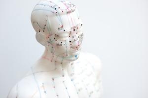 Acupuncture, montréal, physiothérapie, clinique médicale, rendez-vous, en ligne,